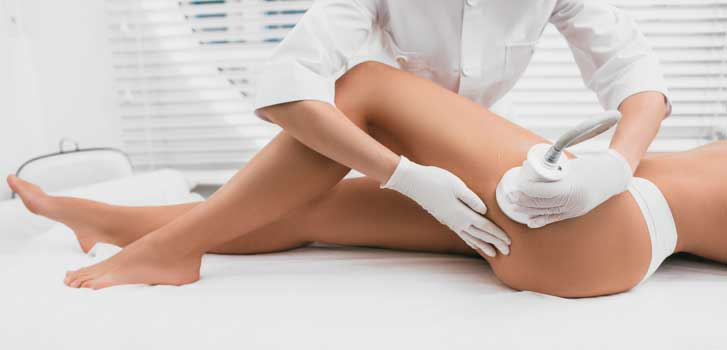 cellulite leaser treatment