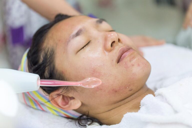 using high-frequency machine for acne prone face